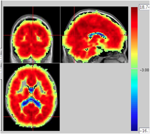 Global signal regression: the beauty or the beast? | The R-fMRI Network